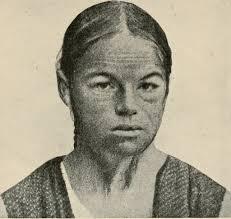 MYXOEDEMA AND CACHEXIA STRUMIPRIVA