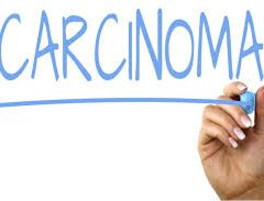 HOMOEOPATHY AND THE TREATMENT OF CARCINOMAS