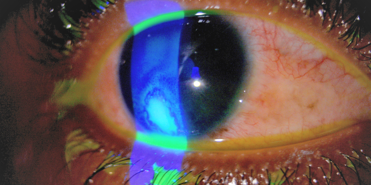 A CASE OF CORNEAL ULCER CURED WITH SENEGA