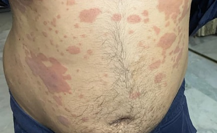 Psoriasis treated with homeopathy: A case report